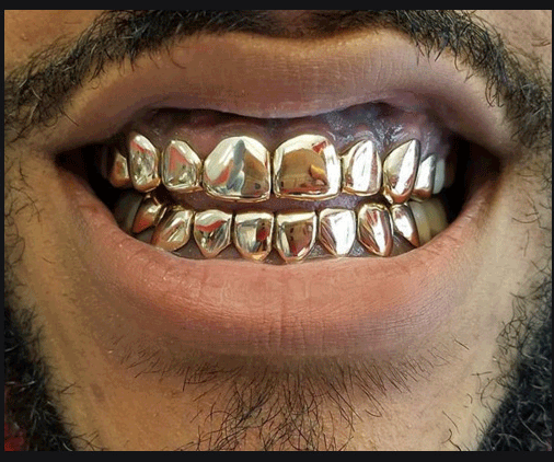 Gold Teeth Specialists   Bringing the best in gold teeth grillz